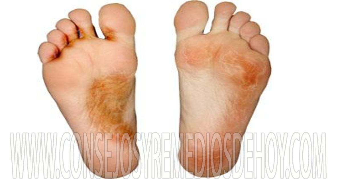 Athlete's foot (tinea pedis): Pictures, symptoms and treatment