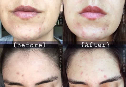 Lactic Acid Exfoliant Before & After - The Acne Experiment