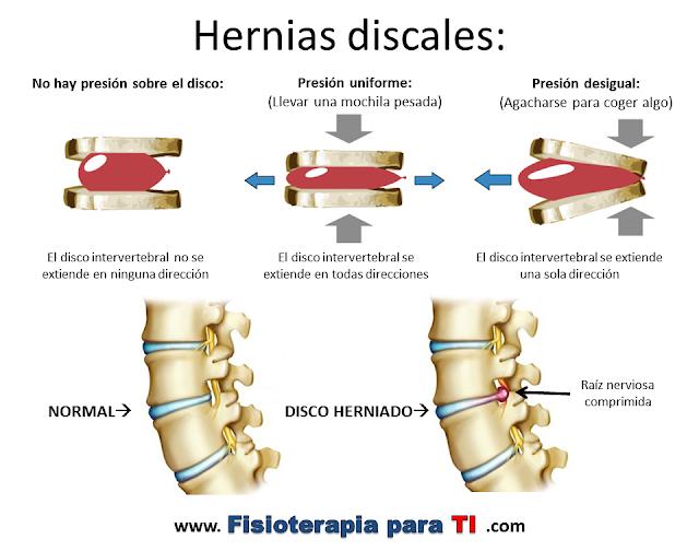 Que enfermedades puede llamar sheynyy la osteocondrosis