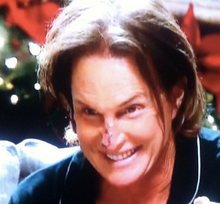 Bruce Jenner Neck Surgery, Adam's Apple