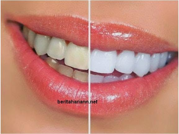 Petua Putihkan Gigi Yang Kekuningan