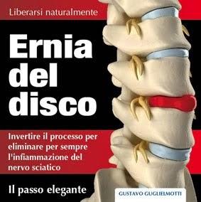 Ernia del disco - Risolvere