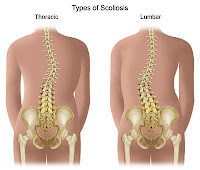 Physical Examination of Scoliosis