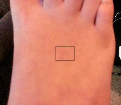 Mark on Foot