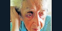 "Frail old lady tortured in South Africa ""care"" center"