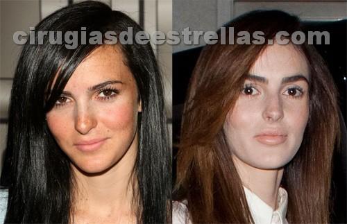 Ali Lohan antes y después