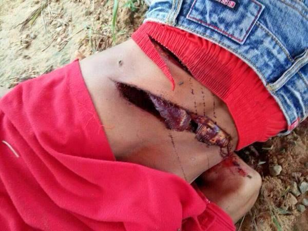18 SX GAMBAR Lelaki ditetak di Division 15 Ladang Land Worthy Jalan Jeroco Kinabatangan