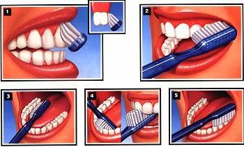 Técnica de cepillado de dientes
