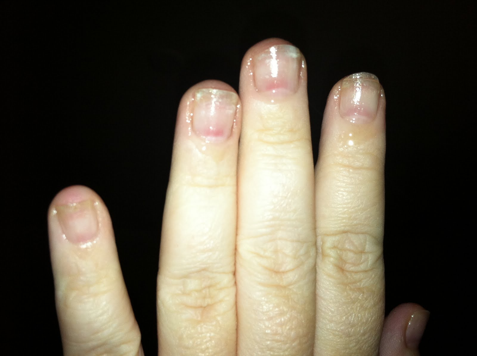 Tiny plastic fingernails: After glue on full cover nail removal