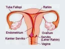 Obat Untuk Penyakit Kanker Rahim