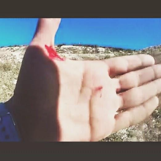 spartan race madrid españa fotos sangre