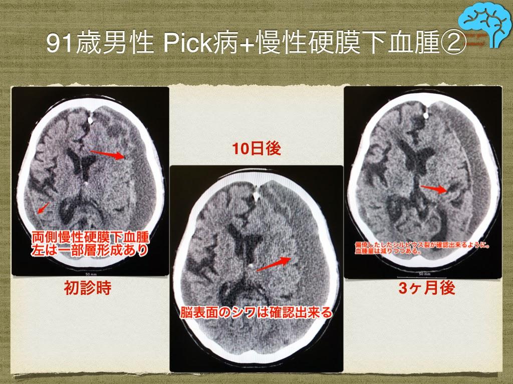 五苓散による慢性硬膜下血腫の治療。