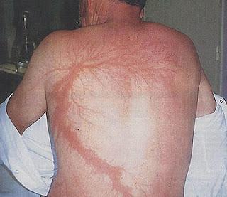 آثار صعقات البرق على الجسم البشري