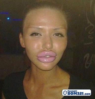 Transformasi Bibir