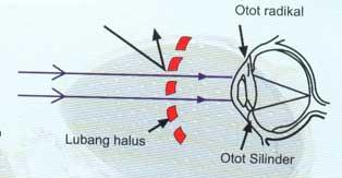 menyembuhkan mata silinder secara alami