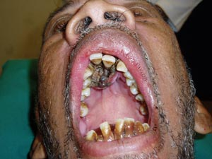 Maggots in mouth