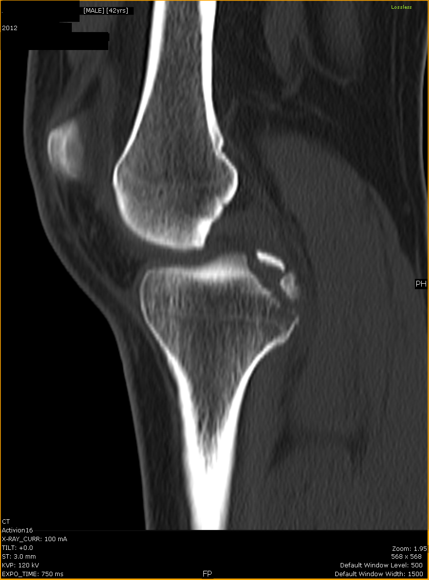 ShareMyRadiology 放射线学-3.bp.blogspot.com