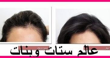 fc952b249558a كيف تتم عملية زراعة الشعر بالصور هل الشعر المزروع يتساقط كيفية زراعة الشعر  الطبيعي ~ عالم ستات وبنات
