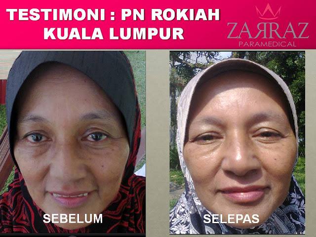 testimoni pengguna serum zarraz, stemcell serum zarraz, zarraz paramedical