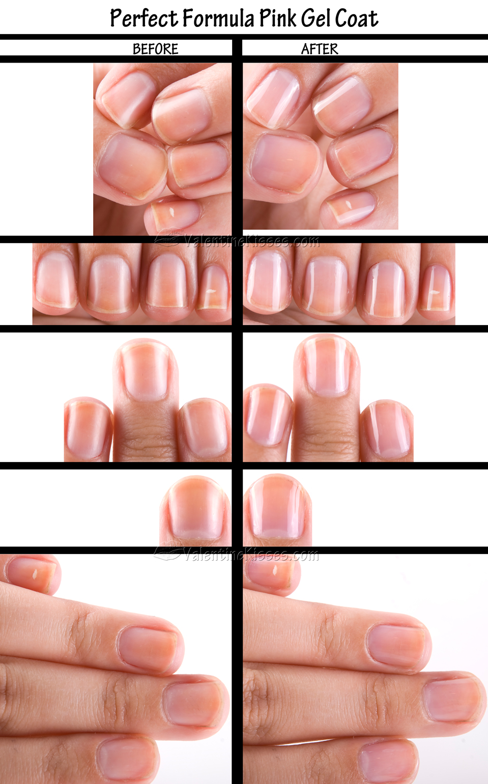 Fine Transparent Nail Polish Colors Tiny Nail Art Designs In Red Round Black Nail Polish Meaning Nail Arts Latest Old Nails Are Yellow From Nail Polish GreenNail Art Tree Valentine Kisses: Perfect Formula Pink Gel Coat: Pics, Before ..