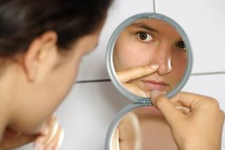 Como eliminar las cicatrices del acne
