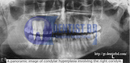 1 Condylar hyperplasia   Definition, etiology