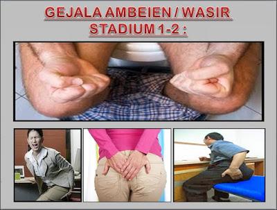 Gejala Ambeien Stadium 1 - 2