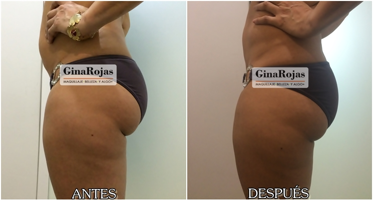 Antes y después de una hidrolipoclasia