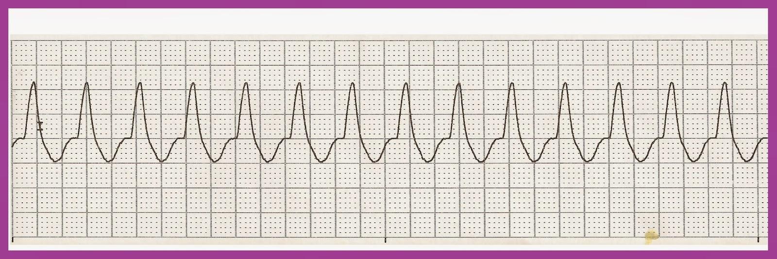 Float Nurse: EKG Rhythm Strip Quiz 190 Ventricular Tachycardia Rhythm Strip