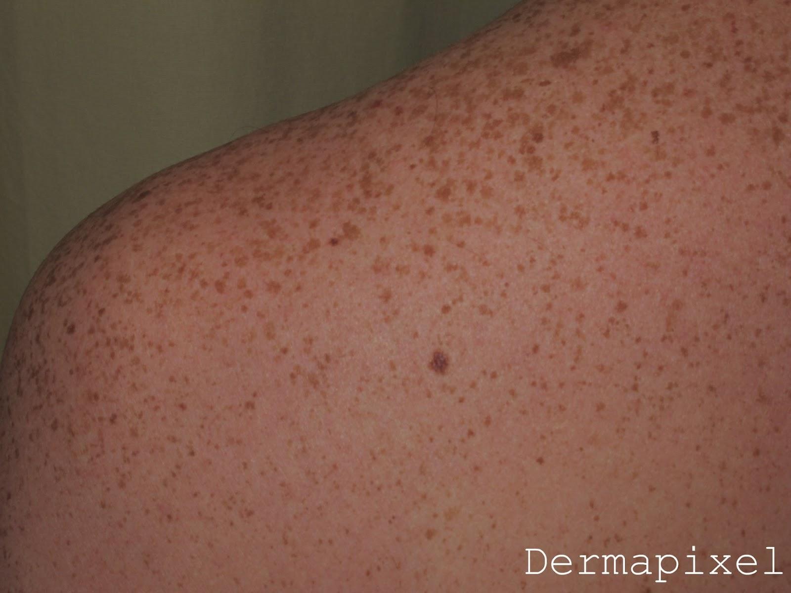 Chemerichnaya el agua de las manchas de pigmento las revocaciones