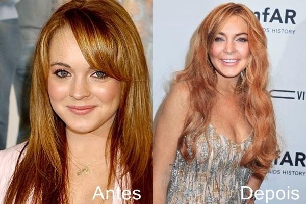Antes e depois dos famosos -Lindsay Lohan