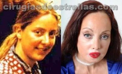 51 cirugías plásticas para ser Nefertiti