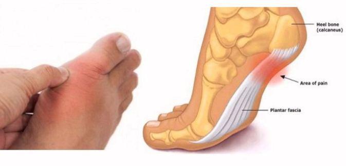 inflammation sous le pied