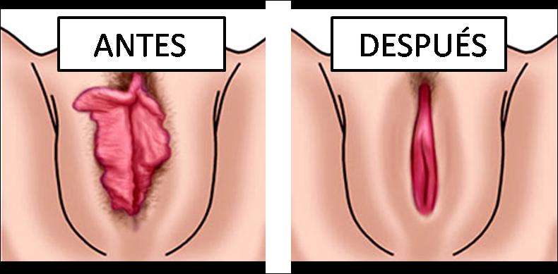 vaginas con labios grandes: