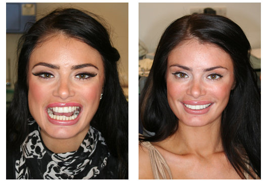 My veneers cost me just under   163 5 000 for eight  which is an ah-may    Veneers