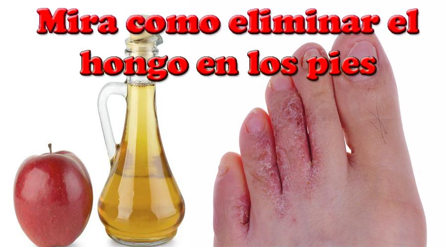 La medicina pública del hongo los pies