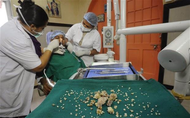Extraen 232 dientes a un joven de la India