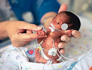 صورة لأصغر مولود في العالم..سبحان الله!