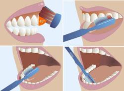 Pasos para el cepillado de dientes