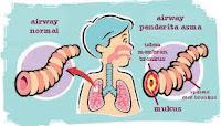 Penyabab Asma Dan pengobatan Asma
