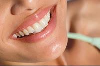 Diş İmplant Tedavisinin Avantajları