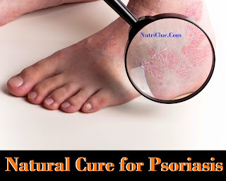 Natural Cure for Psoriasis