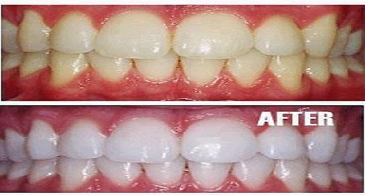 اسنان بيضاء كالثلج دون زيارة الطبيب
