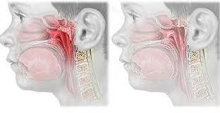 Informatii despre adenoidita cronica la copil