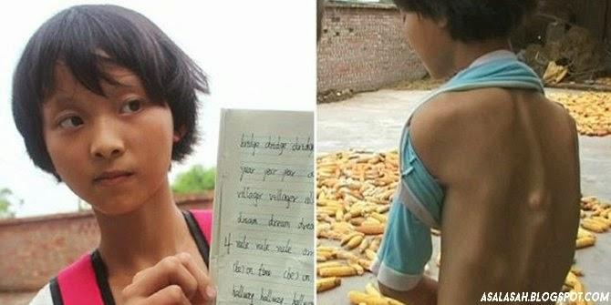 http://asalasah.blogspot.com/2014/10/perempuan-china-ini-menderita-sindrom.html