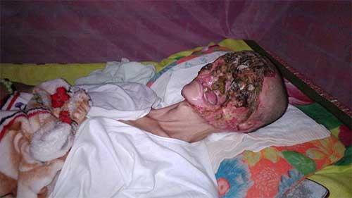 Muka Lelaki Ini Hilang Setelah Di Makan Virus