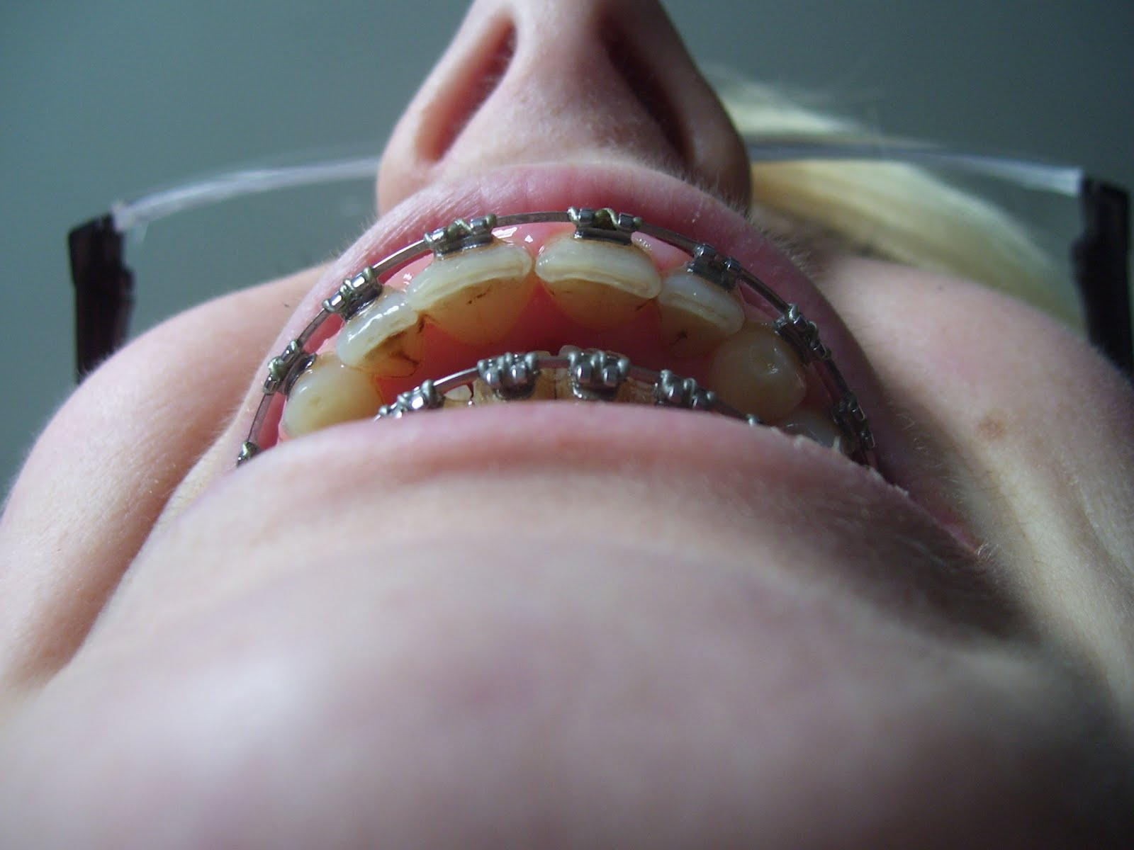 how to avoid stains on teeth from braces
