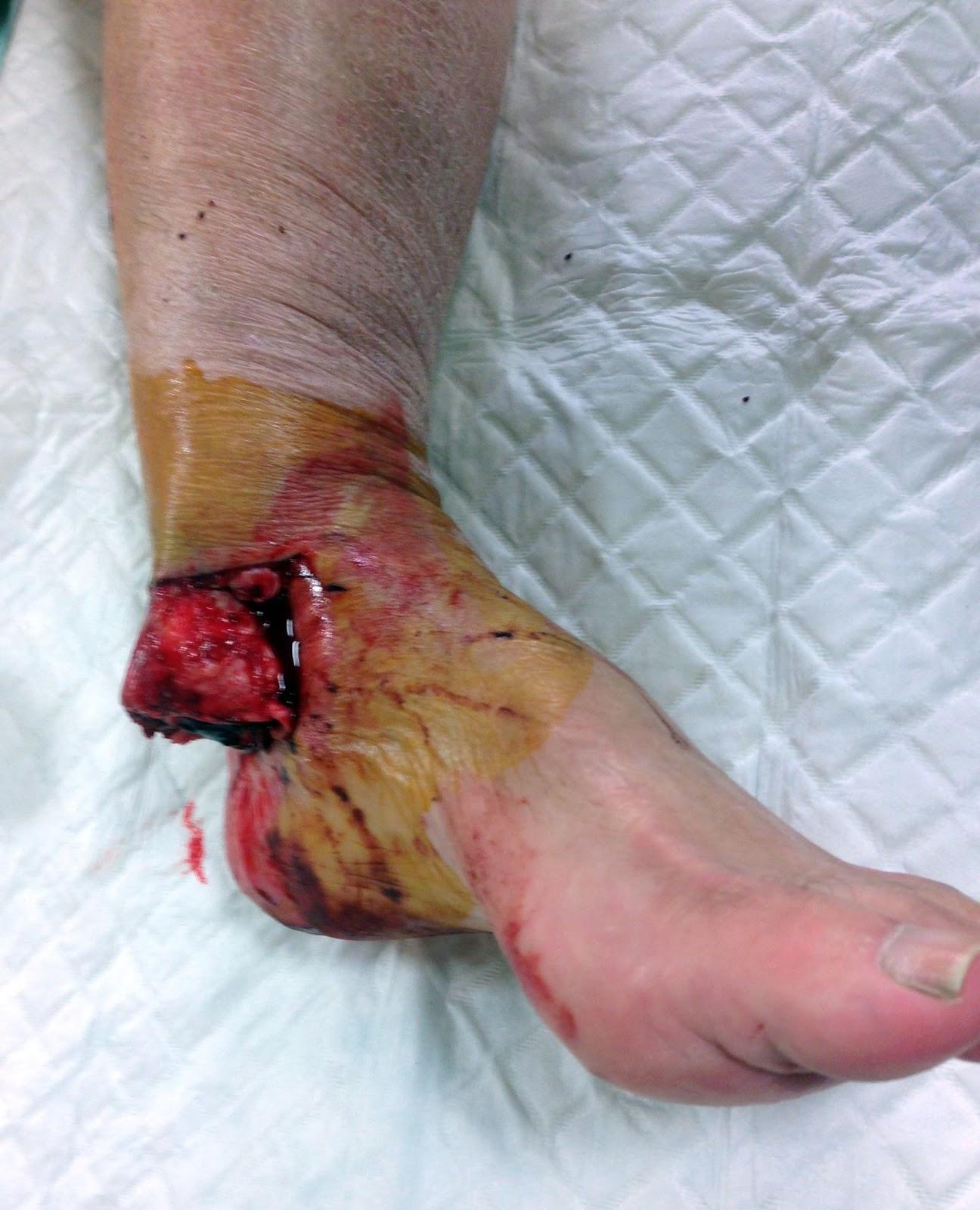 Fracture luxation ouverte de la cheville | Un Jour En Chirurgie ...