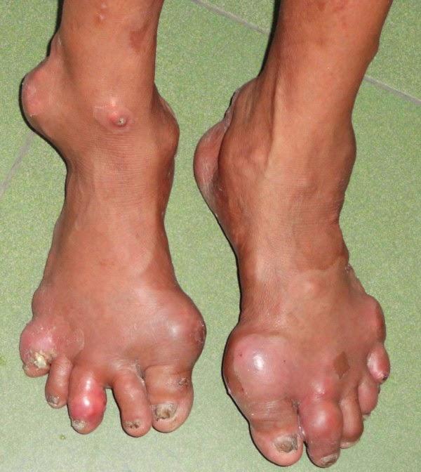 Bệnh Gout khó chữa không?