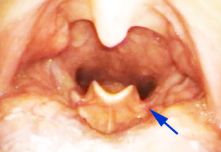 Flap At Back Of Throat 15